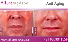 Anti Aging Treatment Before and After Gallery at Affordable Cost in Mumbai, India