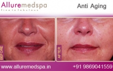 Anti Aging Treatment Before and After Images at Transparent Price  in Mumbai, India