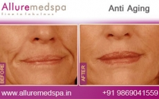 Anti Aging Treatment Before and After Pictures at Reasonable Cost in Mumbai, India
