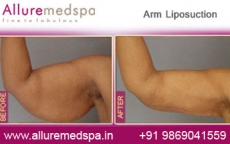 Arm Fat Removal Before After Photos