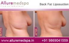Back Fat Liposuction Before After Photos