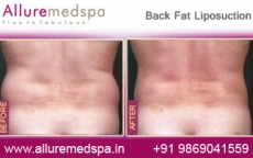 Back Fat Liposelection Before After Photos