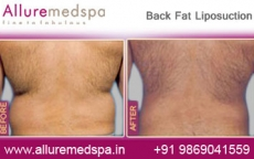 Back Fat Liposcupture Before After Photos