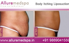 Body Itching Lipo Before After Photos