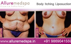 Body Itching Liposuction Before After Photos