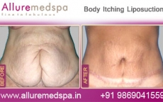 Body Contouring Liposuction Before After Photos