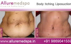 Body Contouring Lipo Before After Photos