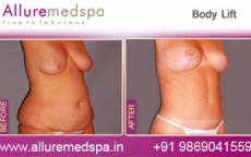 Body Lift Before and After Photos in Mumbai, India