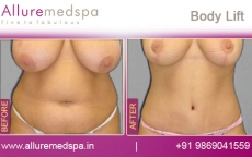 Breast Lift Surgery / Tummy Lift Before and After Pictures in Mumbai, India