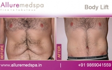Total Body Lift Surgery Before & After Images in Mumbai, India