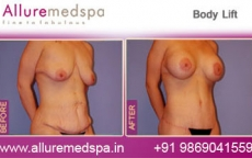Body Contouring Before & After Photos in Andheri, Mumbai, India