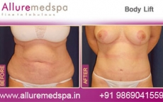 Lower Body Lift Before & After Images in Mumbai, India