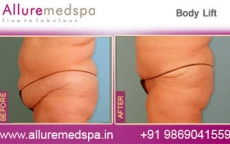 Massive Weight Loss Surgery Before & After Pictures in Mumbai, India
