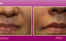 Botox Treatment Before and After Images by Celebrity Cosmetic Surgeon Dr. Milan Doshi in Mumbai, India