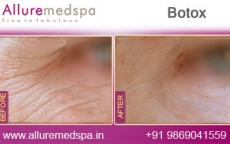 Botox Injection Treatment Before and After Gallery at Transparent Cost in Mumbai, India