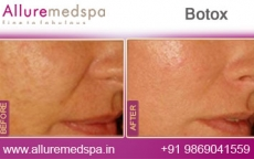 Botox Cosmetic Treatment Before and After Images at Affordable Price in Mumbai, India