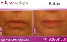 Botox Treatment Before and After Pictures at Reasonable Cost in Mumbai, India