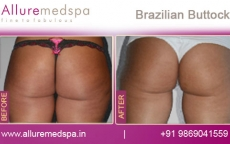 brazilian-buttock-before-and-after-gallery-andheri-west-mumbai-india