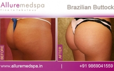 brazilian-buttock-before-and-after-photos-andheri-west-mumbai-india