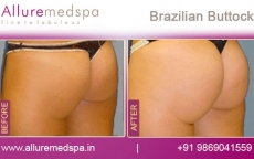 brazilian-buttock-before-and-after-pictures-andheri-west-mumbai-india