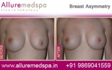 Breast Asymmetry Before and After Gallery in Mumbai, India