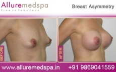 Breast Asymmetry Correction Augmentation Before & After Photos in Mumbai, India