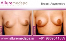 Asymmetrical Breasts Before and After Surgery in Mumbai, India