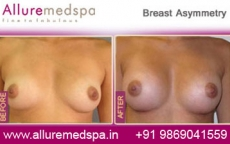Breast Asymmetry Before and After Photos in Mumbai, India