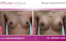 Pictures of Before and After Breast Augmentation with Areola Incision