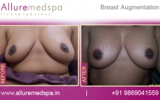Silicone Breast Implants Before and After Photos