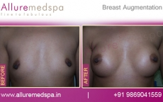 Breast Augmentation Before and After Photos in Mumbai, India