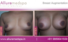 breast-augmentation-before-and-after-pictures-mumbai-india