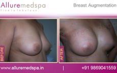 Saline Breast Implants Before and After Gallery in Mumbai, India