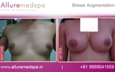 Breast Enlargement with Saline Implants Photos in Mumbai, India