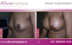 Saline Breast Augmentation with Armpit Incision Before & After Pictures in Mumbai, India