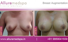 Breast Silicone Implants Before And After Results