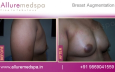 Low Profile Saline Breast Implants with Armpit Cut Before And After Photos in Mumbai, India