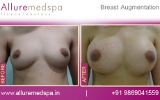 Breast Implants Surgery Before and After Pictures in Mumbai, India