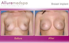 Breast Implants Low Profile Subglandular Before and After Pictures at Reasonable Cost in Mumbai, India
