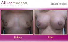 High Profile Silicone Breast Implants with Nipple Incision Before and After Photos