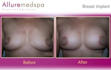 Breast Augmentation with Saline Implants Before and After Images