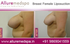 Breast Female Liposuction Before After Photos