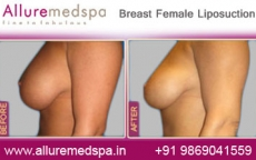 Breast Female Liposelection Before After Photos