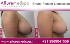 Breast Female Lipo Before After Photos