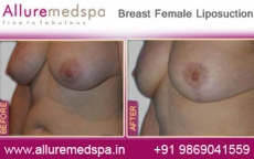 Breast Female Fat Removal Before After Photos