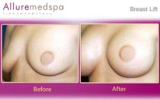 Breast Lift with Silicone Implants Before and After Images in Mumbai, India