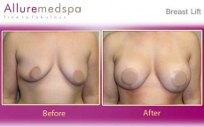 Breast Lift with Breast Ptosis Lollipop Lift Before and After Images by Celebrity Cosmetic Surgeon Dr. Milan Doshi in Mumbai, India