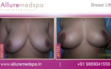Breast Lift with Breast Ptosis Lollipop Lift Before and After Gallery at Affordable Cost in Mumbai, India