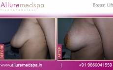 Mastopexy‏ - Before and After of Breast Lift Surgery Photos