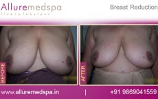 Breast Reduction Before and After Photo Gallery in Mumbai, India
